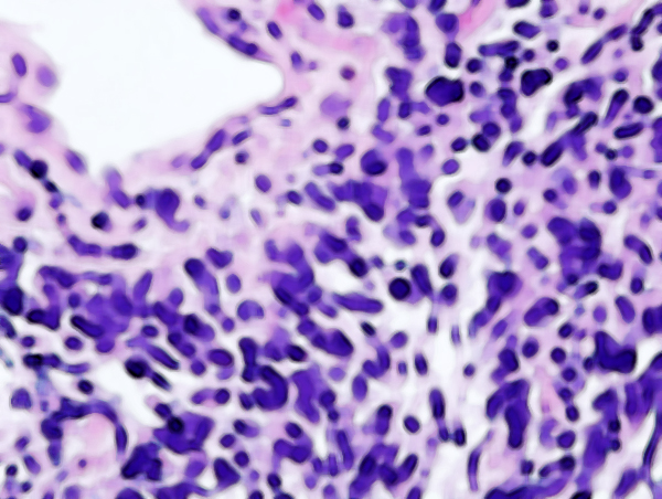 New Maverick Study Examines Outcomes for Small Cell Lung Cancer Patients